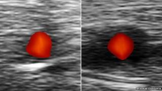 A la izquierda se ve una arteria sana. A la derecha una afectada por arteritis de células gigantes.